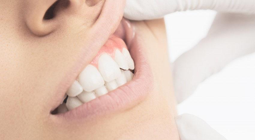 Parodontologia - Studio dentistico Wdent