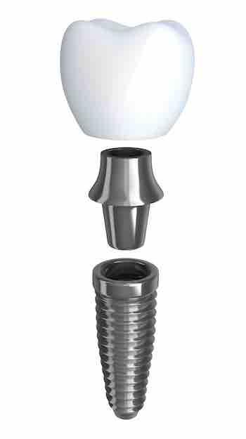 implantologia a carico immediato - Studio dentistico Wdent