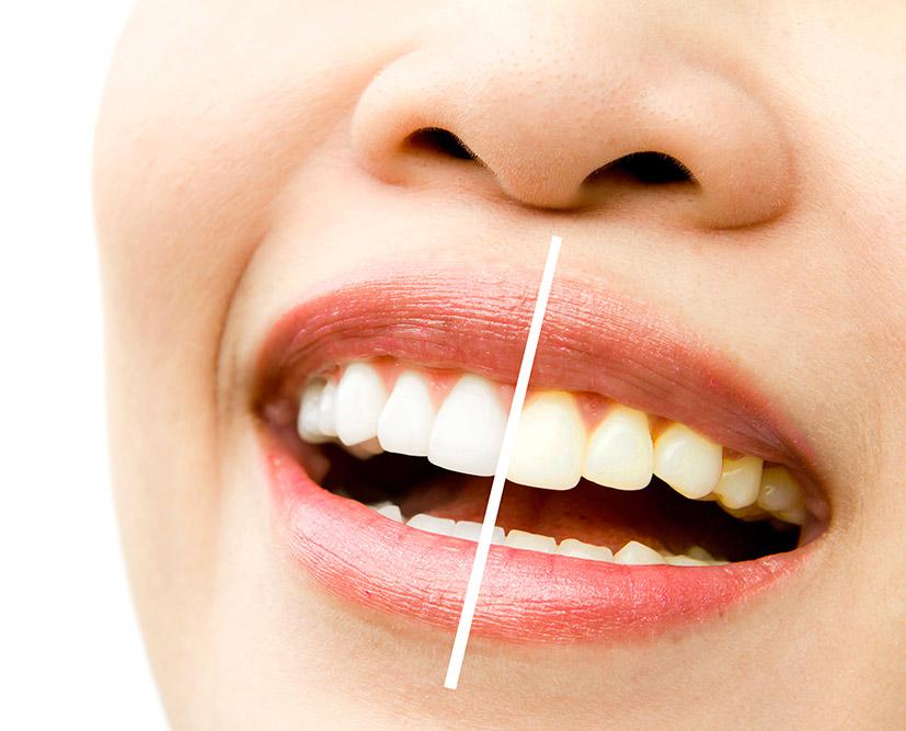 Sbiancamento professionale denti - Studio dentistico Wdent