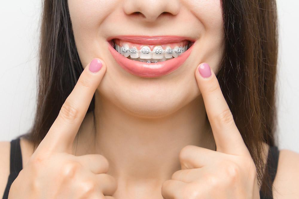 Ortodonzia - Studio dentistico Wdent