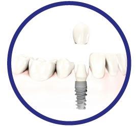 Impianti dentali: per ogni paziente una soluzione - Studio dentistico Nappo-Salzano