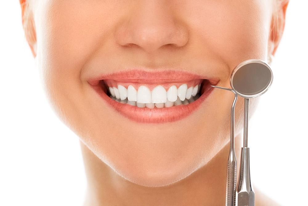 Pulizia dei denti - Studio dentistico Wdent