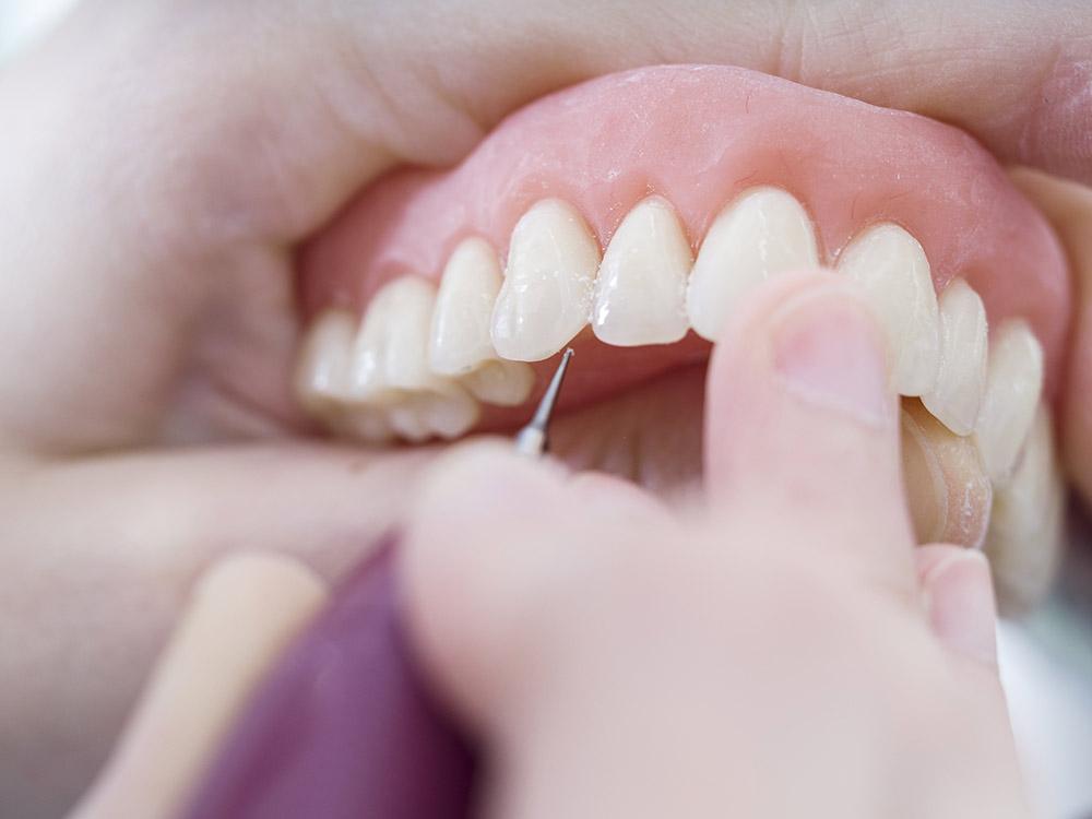Protesi dentaria mobile - Studio dentistico Wdent