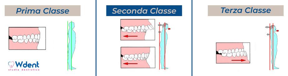 Quando i dolori alla schiena si combattono dal dentista - Studio dentistico Nappo-Salzano